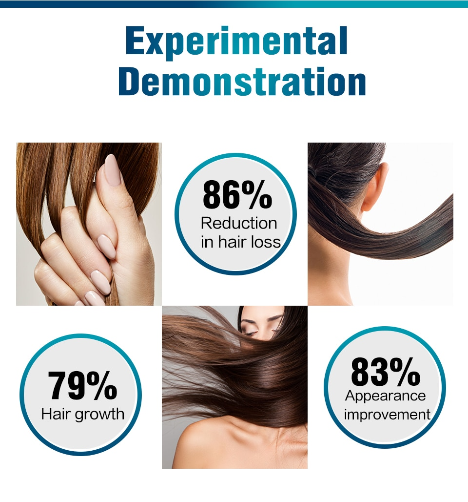 Fast Hair Growth Essence Natural Herbal Health Treatment Hair Loss Makes Hair Growth Longer and Thicker Hair Care Products 60ml